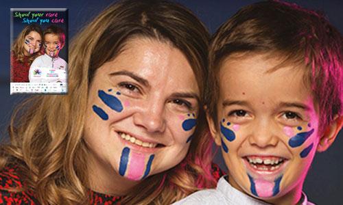 12ème Journée maladies rares : peignez-vous le visage !