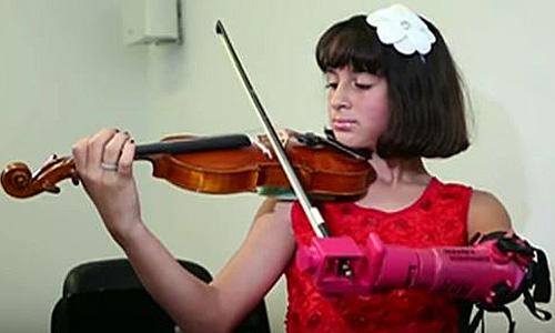 A 10 ans, elle joue du violon avec une prothèse imprimée 3D
