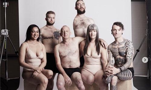 Body positive : 19 modèles amputés se mettent à nu