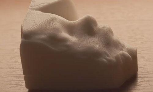 """Déficients visuels : échographie 3D pour """"voir"""" son bébé"""