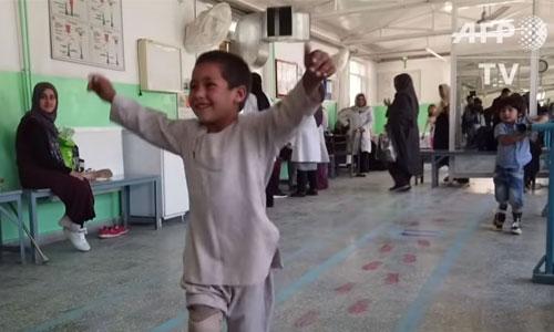 Le sourire d'Ahmad, amputé de 5 ans, émeut la Toile