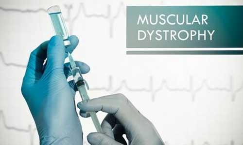 Myopathie de Duchenne : début des tests d'un médicament
