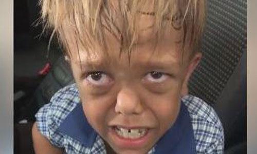 Nanisme : harcelé, Quaden veut se suicider, la vidéo buzz