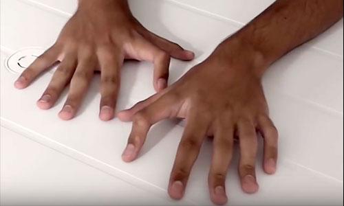 Polydactylie : 6 doigts dotés de capacités hors-normes