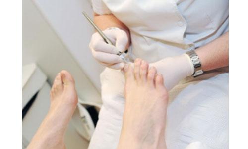 Santé du pied: téléconsultations gratuites toute la semaine