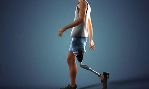 Une prothèse rétablit les sensations de patients amputés